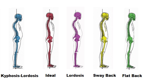 The Importance of Having Good Posture - Chiropractic ...