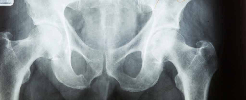 las vegas hip pain